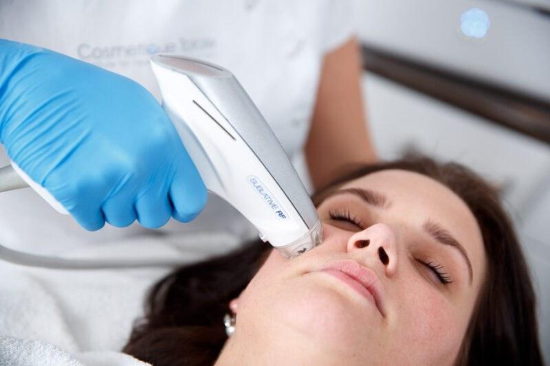 Laserbehandeling e-matrix REFLEQT CLINIC Haarlem acne behandeling