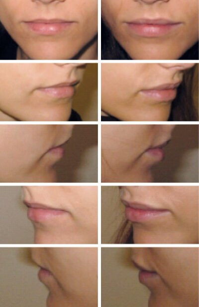 Lipfiller lip fillers. Franca van der Smit REFLEQT-CLINIC Haarlem
