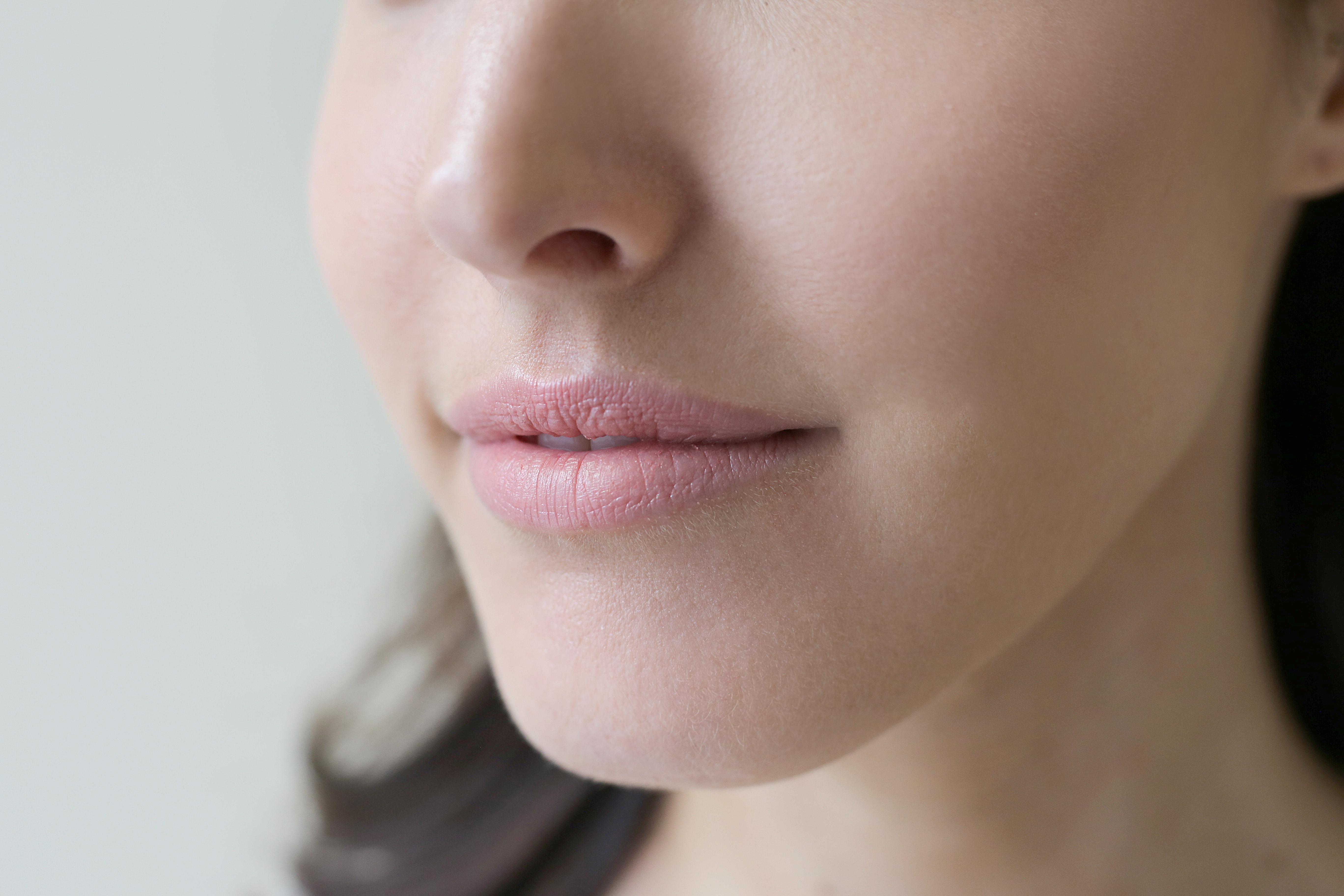 lippen opvullen refleqt clinic haarlem