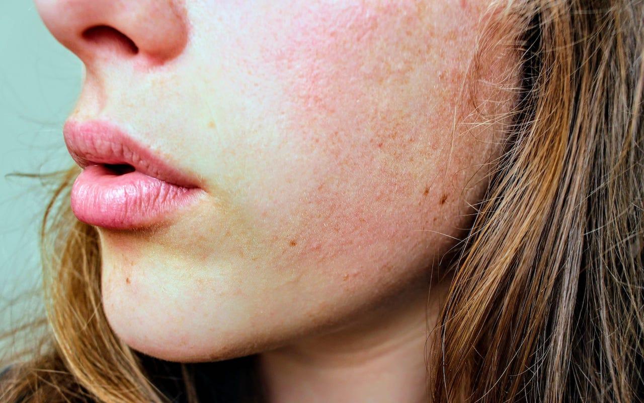 Een geïrriteerde droge huid? ~ Refleqtclinic.nl